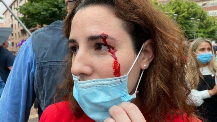 Vox denuncia una 'espiral de violencia':