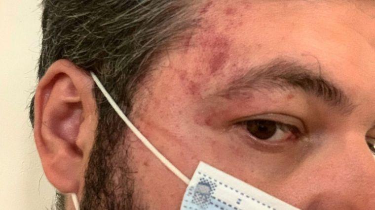Buxadé denuncia la agresión de dos marroquíes al jefe de prensa de VOX en el Parlamento de Andalucía