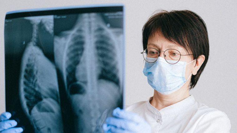 El 80% de los pacientes infectados de Covid-19 desarrollan uno o más síntomas a largo plazo